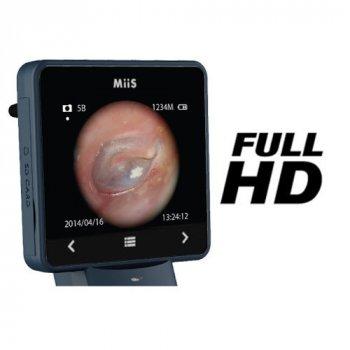 Отоскоп цифровой MIIS EOC100 Horus Digital Otoscope Full HD для диагностики слухового канала (mpm_00255)